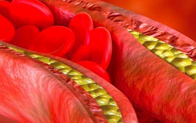 Diálogos Estadão Think   Doenças cardiovasculares